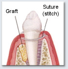 Bone Graft - Closing Up