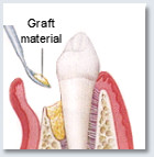 Bone Graft -Placing the Graft