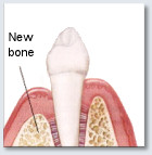 Bone Replacement - After the area Heals