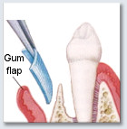 Guided Tissue Regeneration - Surgery on Gum and Bone