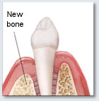 diagram shoing new bone growth after the area has healed from the procedure
