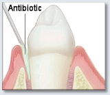 Periodontal Disease Treatment Antibiotics