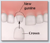 Crown Lengthening - unctional Crown Lengthening