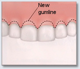 Crown Lengthening - Cosmetic Lengthening