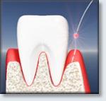 LANAP Laser Surgery - Laser accesses the pocket.