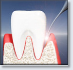 ANAP Laser Surgery - laser removes diseased tissue