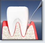 ANAP Laser Surgery - laser finishes debriding